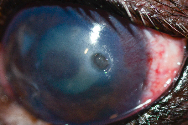 """This is a typical deep ulcer that you can tell is deep because there is a divot,"" Dr. Alario says. ""There are blood vessels growing towards it on the cornea to help it heal."""